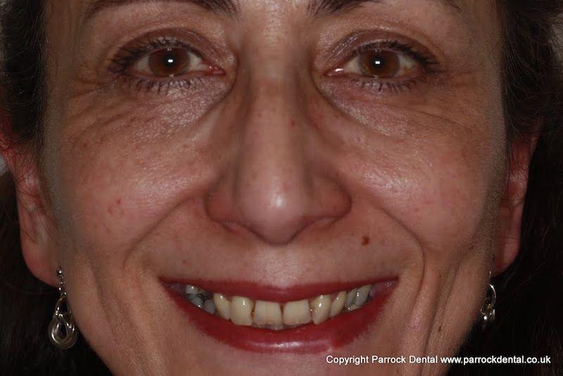 Kathleen_face_before_1