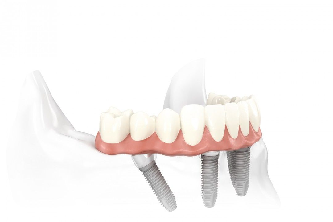 Are Dental Implants the answer to your dental problems?