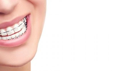 Are Braces for Me?