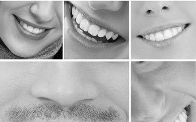 Which patients have the healthiest mouths?
