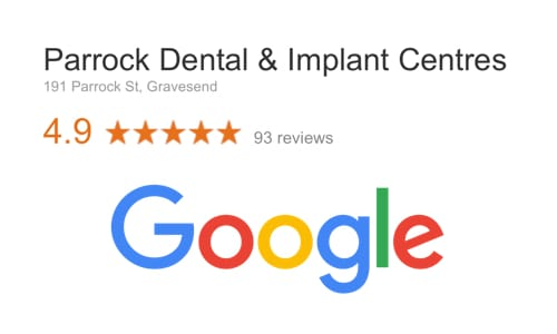 Dental Implant Reviews in Kent