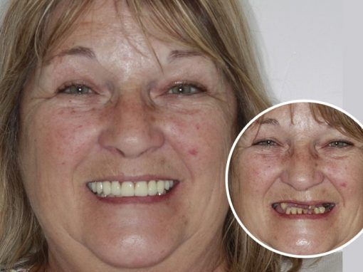 Christine – Replaced full set of teeth