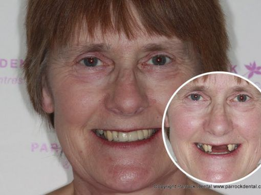 Linda – Replaced single tooth