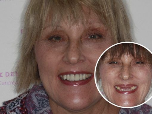 Amanda – Replaced multiple teeth