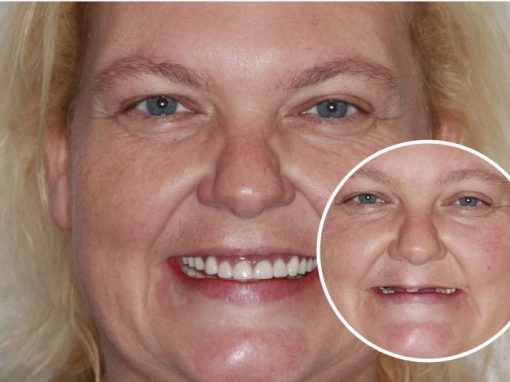 Claire – Replaced full set of teeth