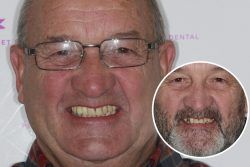 David – Replaced single front tooth