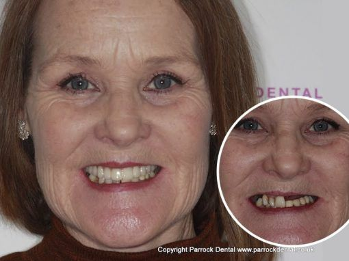 Carol O – Replaced full set of teeth