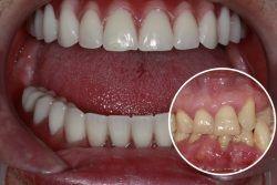 John – Replaced full set of teeth
