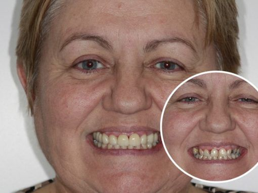 Sheila – Replaced multiple teeth