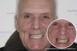 Raymond – Replaced full set of teeth
