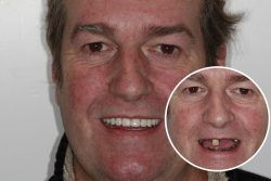 Richard – Replaced full set of teeth