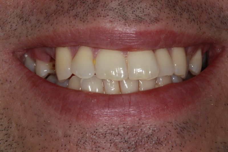 Before And After Image Dental Implants at Parrock Dental In Gravesend Kent