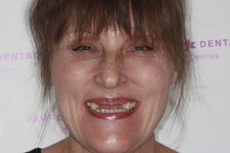 amanda-lovell-upper-3-3-and-ur5-implants-before-missing-front-and-back-teeth-18
