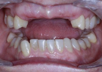 amanda-lovell-upper-3-3-and-ur5-implants-before-missing-front-and-back-teeth-19