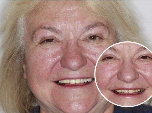 Carole – Replaced multiple teeth
