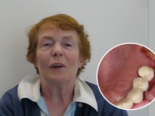 Florence – Replaced single back tooth