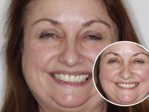 Joanne – Replaced full set of teeth