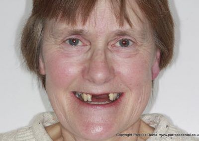 case-2-linda-finch-upper-112-missing-front-teeth-implants-109