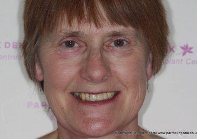case-2-linda-finch-upper-112-missing-front-teeth-implants-20