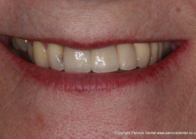 case-2-linda-finch-upper-112-missing-front-teeth-implants-22