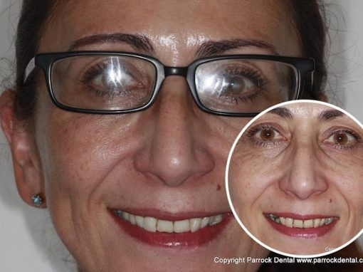 Kathleen – Replaced single back tooth