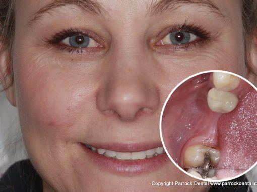 Natasha – Replaced single back tooth