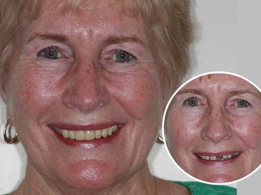 Irene – Replaced multiple teeth