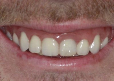 dental-implants-in-kent-liam