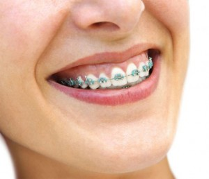 orthodontics Kent