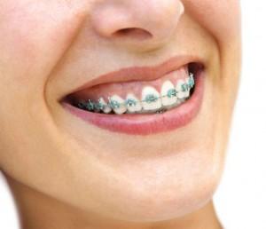 orthodontics Kent