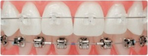 braces5